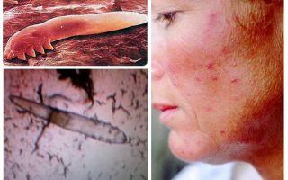 כינים תת-עוריים בגוף האדם ובראש