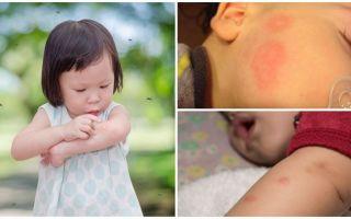 עקיצות יתושים על עור מבוגר או ילד