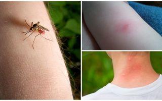 מה ההבדל בין עקיצת יתוש לבין נגיסה?