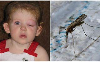 מה לעשות אם לילד יש עין נפוחה אחרי עקיצת יתוש