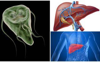 Giardia בכבד - סימפטומים וטיפול