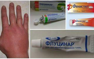 אחרי עקיצת יתוש, יד של ילד או של מבוגר נפוחה, עזרה ראשונה
