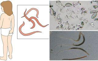 מה זה תולעים וכיצד הם נראים
