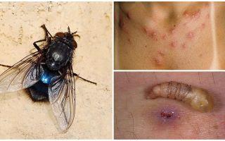זבוב המניח זחלים מתחת לעור האדם