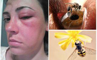 מה אם הדבורה נשכה את העין והיא התנפחה