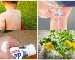 כיצד לשפשף את עקיצות יתושים הילד
