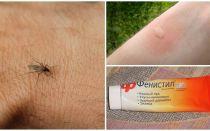 איך וכיצד להסיר את עקצוץ מן עקיצות יתושים אצל ילד ומבוגר