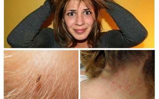 מניעת pediculosis ו גרדת