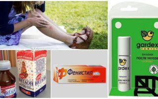 מה לעשות כדי עקיצות יתוש לא לגרד
