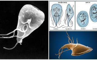 מחלת חניכיים אצל מבוגרים - סימפטומים וטיפול
