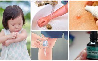 איך ומה לטפל עקיצות יתושים אצל ילד